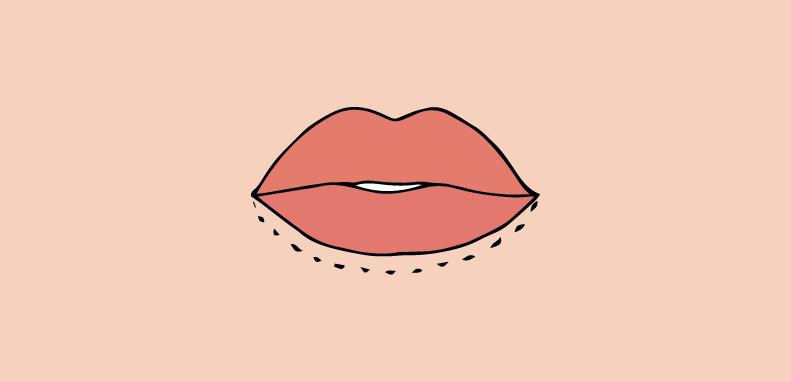 labbro inferiore sottile