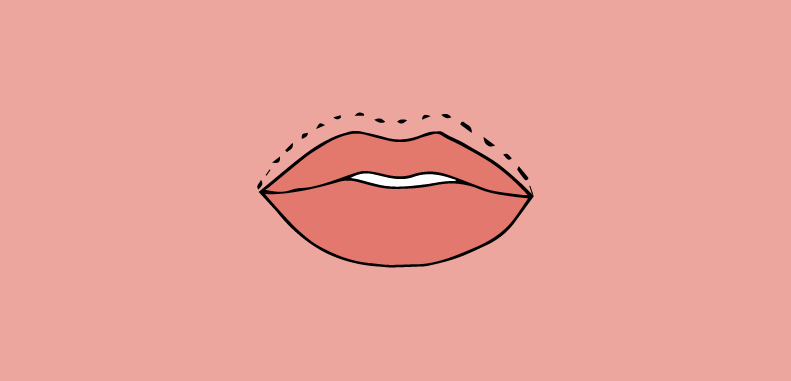 labbro inferiore voluminoso