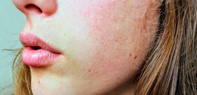 acido salicilico pelle