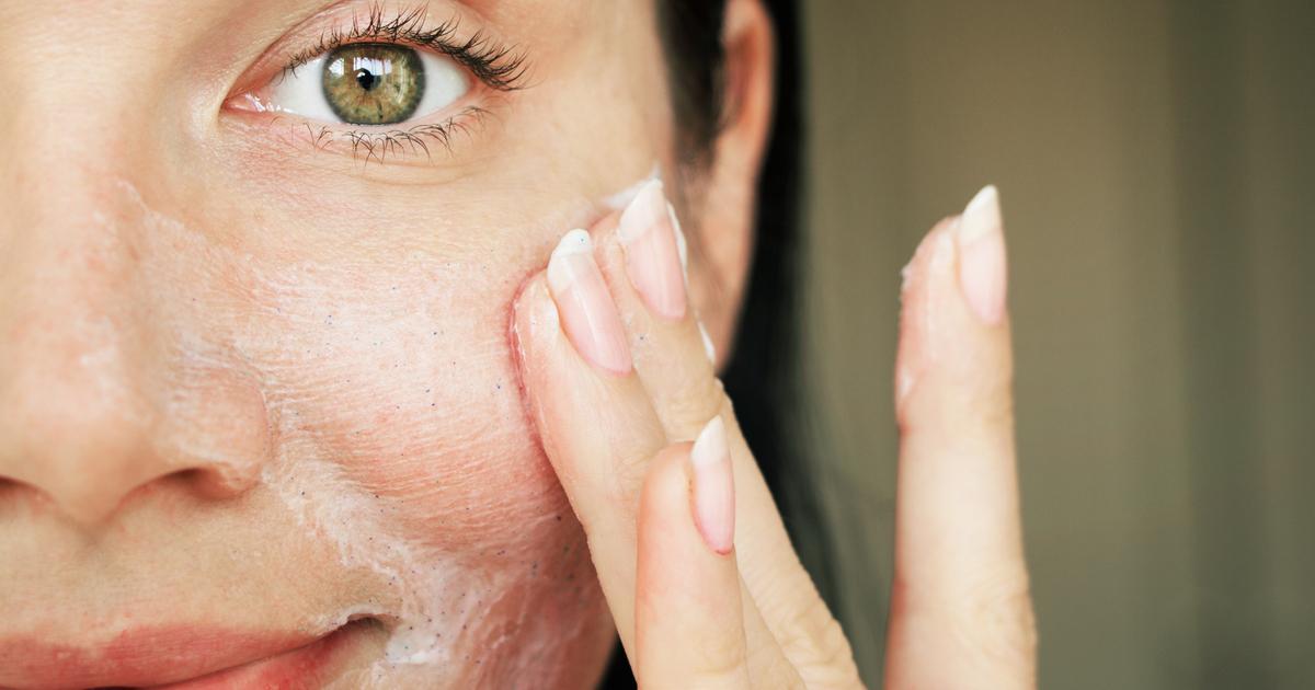 Acido salicilico: tutte le proprietà per la pelle