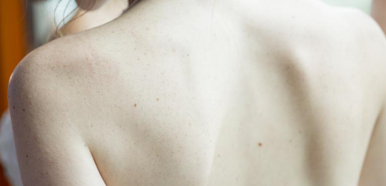 schiena prodotti cosmetici
