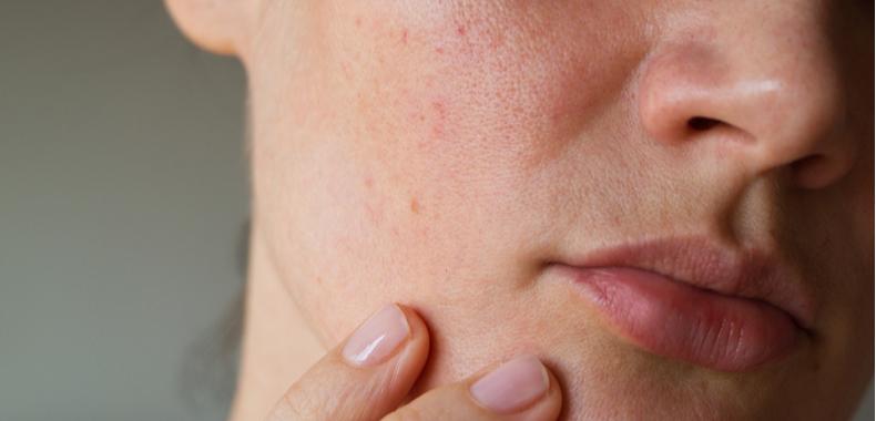 acido mandelico contro acne