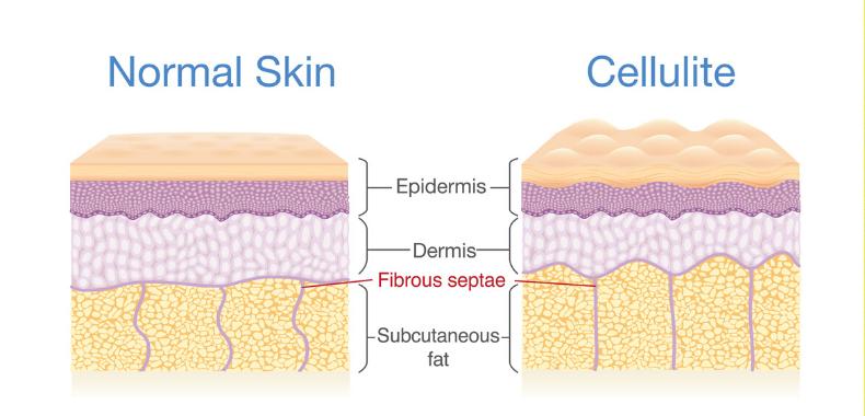 cause-cellulite