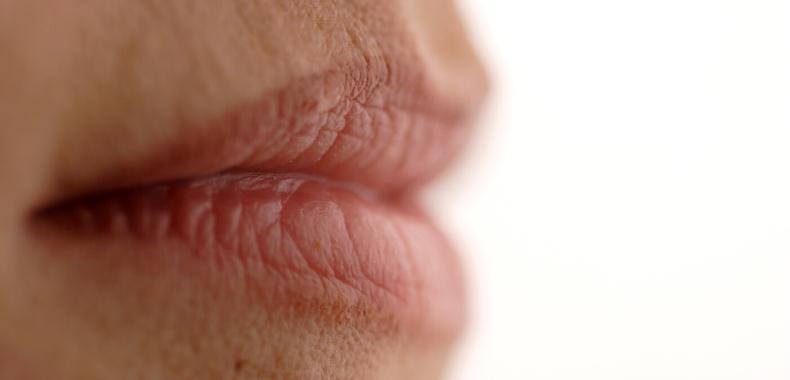 contorno labbra rughe