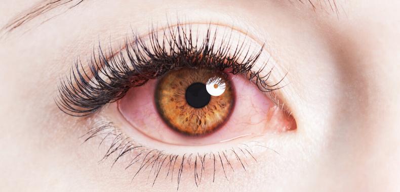 occhi-lacrimazione