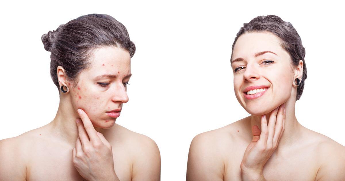 Skincare pelle acneica: consigli ed errori da evitare