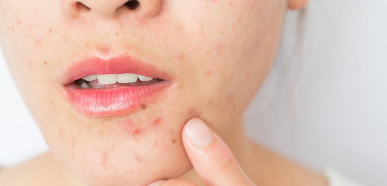 retinolo-acne