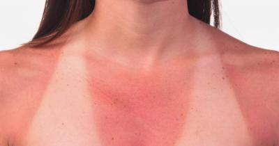 Pelle scottata dal sole? I rimedi naturali per non dire addio alla tintarella
