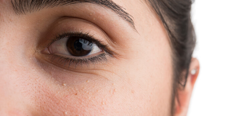 grani di miglio occhi